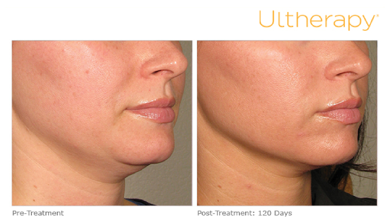 Ultherapy pre and post treatment
