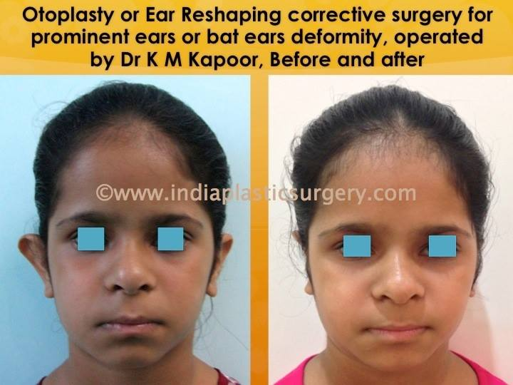 otoplasty- eye surgery before and after