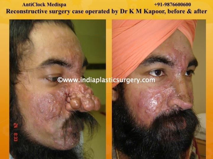 reconstructive surgery before and after