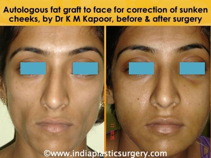 fat transfer to face before and after