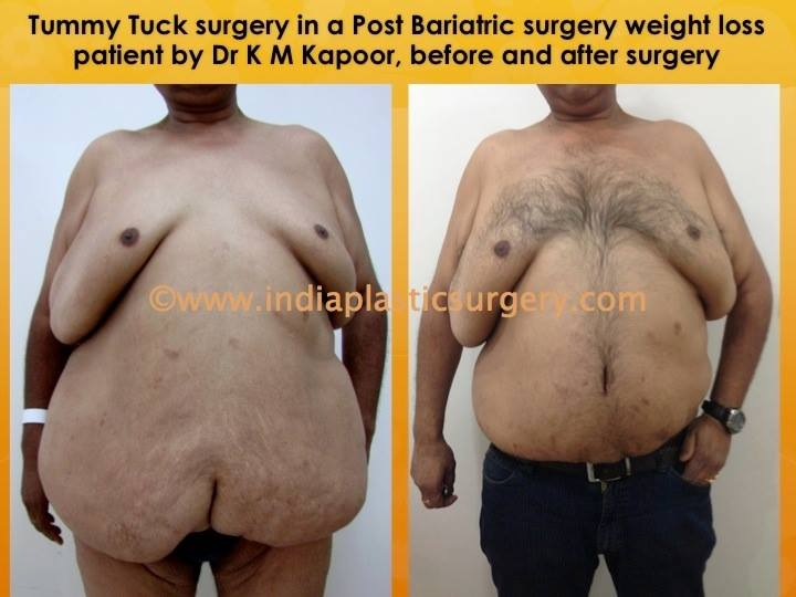 Abdominoplasty-Tummy Tuck before and after