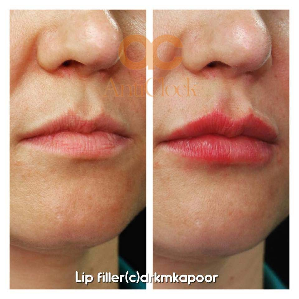 lip fillers before and after picture