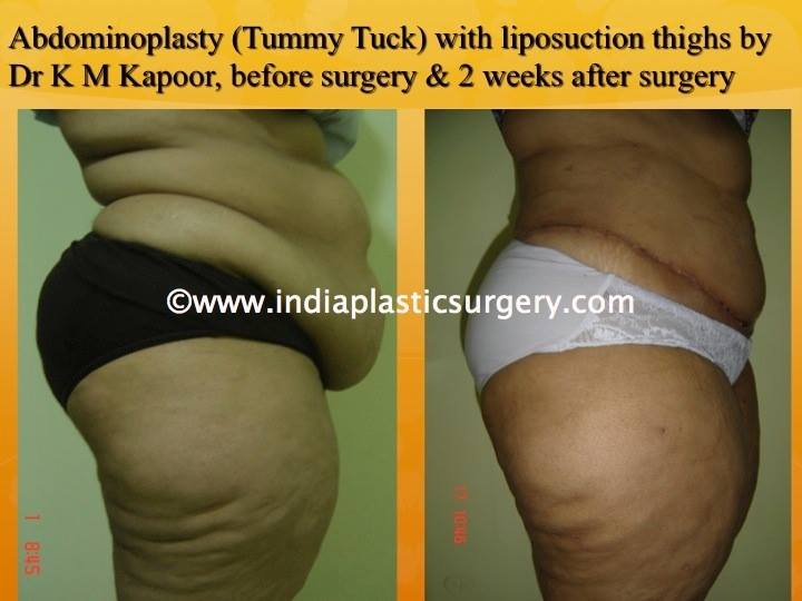 Abdominoplasty-Tummy Tuck Surgery Before and After