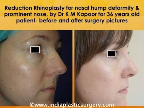 rhinoplasty- nose surgery before and after