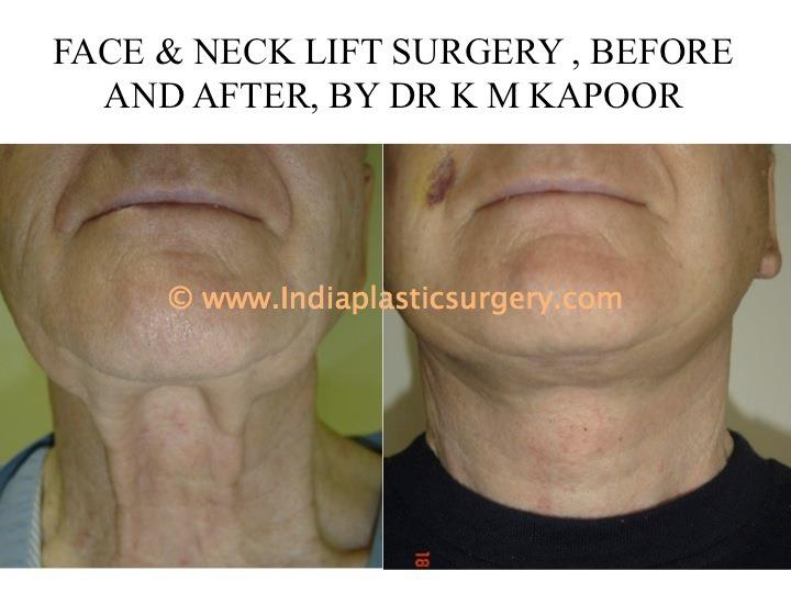 face and neck lift before and after