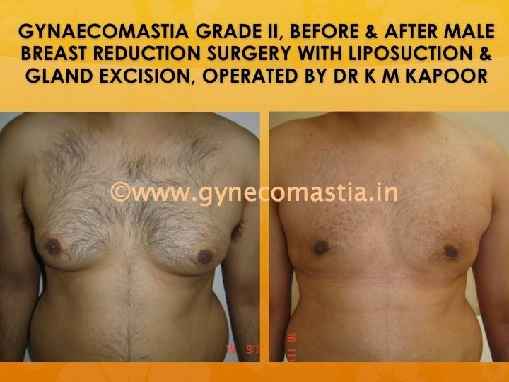 male breast- gynecomastia surgery before and after