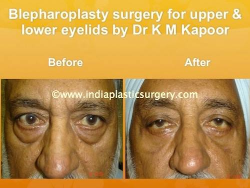 blepharoplasty- eye surgery before and after