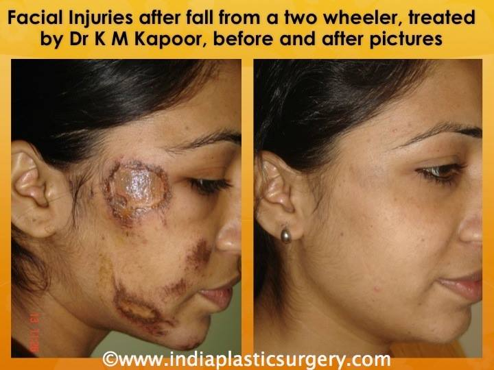 facial injuries before and after