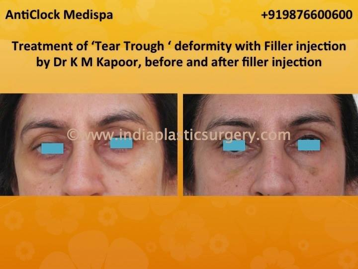 tear trough treatment before and after