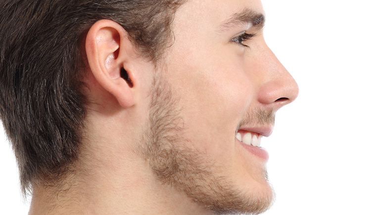 RHINOPLASTY OR NOSE RESHAPING