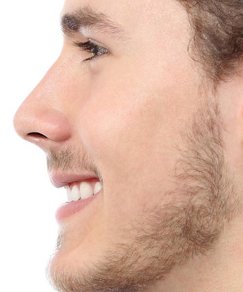 RHINOPLASTY OR NOSE RESHAPING